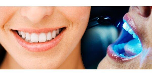 2490 Kč za vysoce účinné a šetrné bělení zubů vhodnotě 5000 Kč.