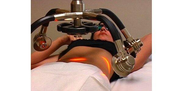 1800 Kč za 3 procedury laserové liposukce ZERONA v původní hodnotě 9000 Kč