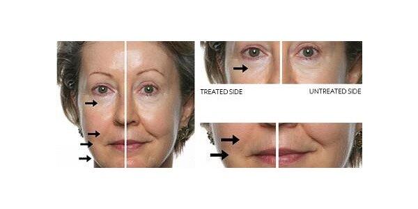 Profesionální kosmetické ošetření galvanickou žehličku na vrásky