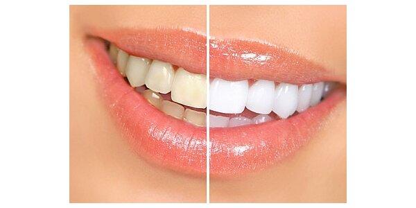 1299 Kč za bělení zubů v původní hodnotě 3999 Kč