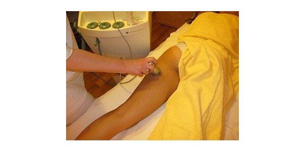 286 Kč za ošetření celulitidy ultrazvukovým přístrojem Dermosonic