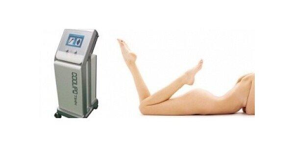 Termokryolipolýza v délce 45 minut