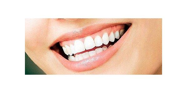 Mějte úsměv zářivý jako hvězda - bělení zubů v Lounech
