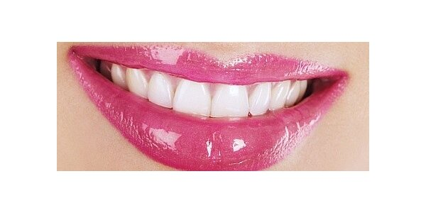 Bělení zubů unikátní metodou - zářivý úsměv na plesovou sezónu