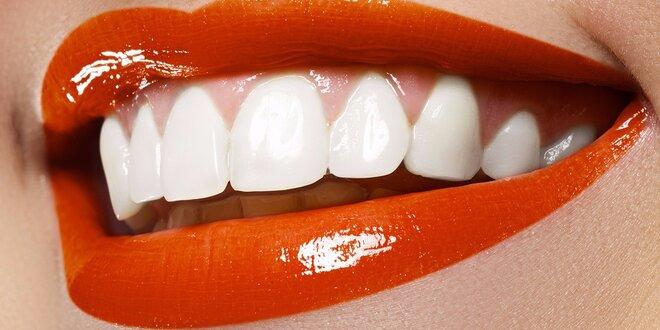 Šetrné bělení zubů neperoxidovým gelem