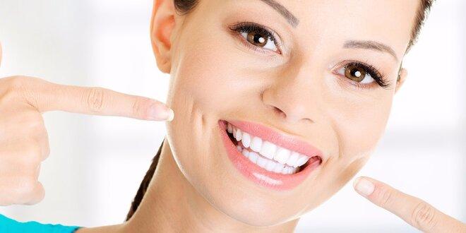 Ordinační bělení zubů novou metodou