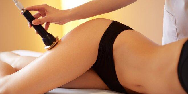 Hubnoucí balíček: 3x liposukce a radiofrekvence