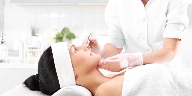 Laserové odstranění žilek na nohou či v obličeji