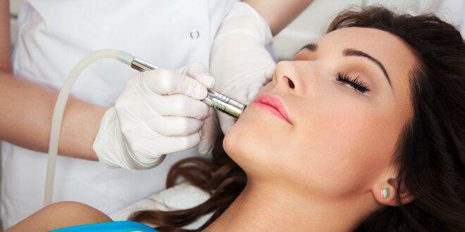 Odstranění fibrom–hemangiomu a výrustků metodou T-Away
