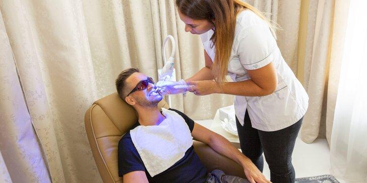 Šetrné bělení zubů s pomocí aktivního uhlí: zářivý úsměv bez peroxidu