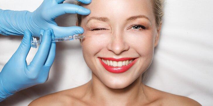 Vyhlazení či úprava mimických vrásek v obličeji botoxem