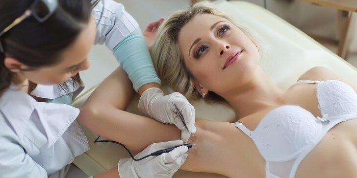 Pošlete chloupky na dlouhou dovolenou: pečlivá epilace diodovým laserem partií dle výběru