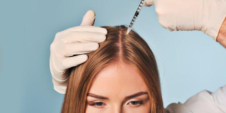 Vlasová mezoterapie proti řídnutí a vypadávání vlasů