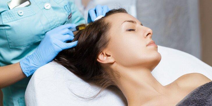 Bojujte účinně s řídnoucími vlasy: 1–6 ošetření mezoterapií i s kmenovými buňkami