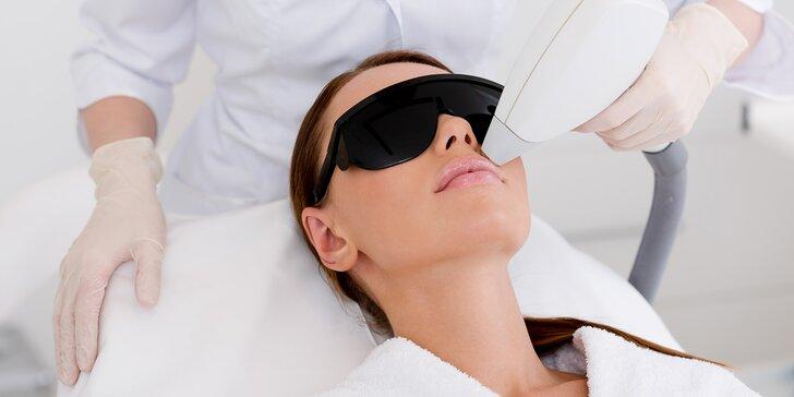 Zbavte se nežádoucích chloupků: trvalá epilace horního rtu pomocí laseru