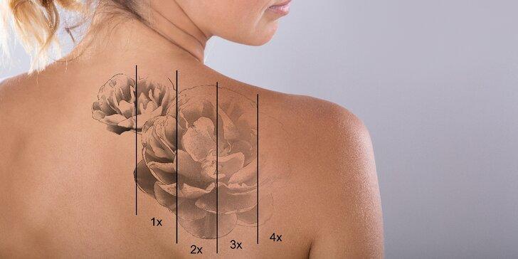 Laserové odstranění tetování či permanentního make-upu