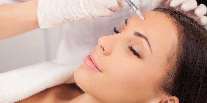Botulotoxin pro okamžité vyhlazení vrásek v oblasti očí, čela nebo glabely
