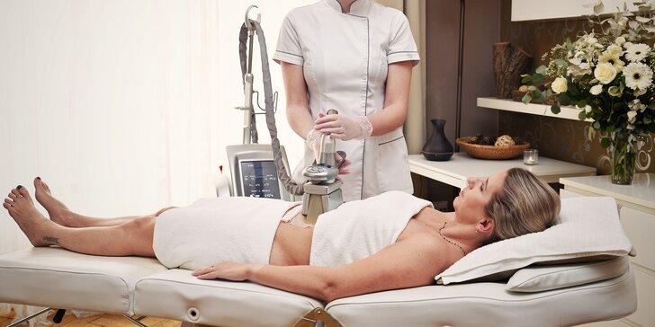 Kryolipolýza: bezbolestná neinvazivní liposukce i s lymfodrenáží