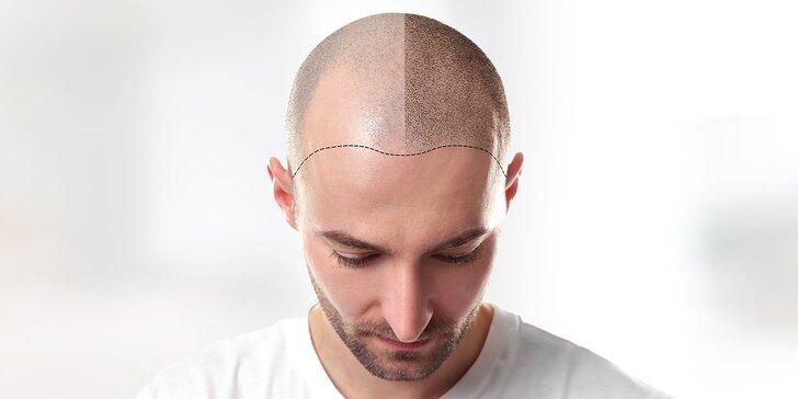 Tetování vlasů mikropigmentací: maskování koutů, kolečka na temeni atd.