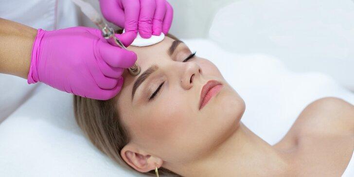 Dokonalé odstranění vrásek, akné, pigmentace či jizev