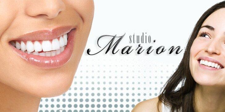 Účinné bělení zubů bez peroxidu pomocí LED lampy a patentovaného gelu. Zářivější úsměv a zuby bělejší o 3 až 8 odstínů během 30minutového sezení.