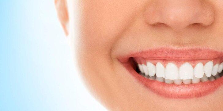 Úsměv filmových hvězd: Ordinační bělení zubů metodou Beyond