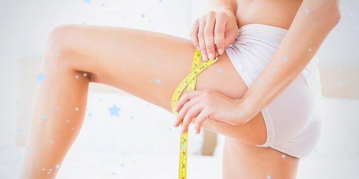 Formujte tělo: 3x ultrazvuková liposukce a radiofrekvence