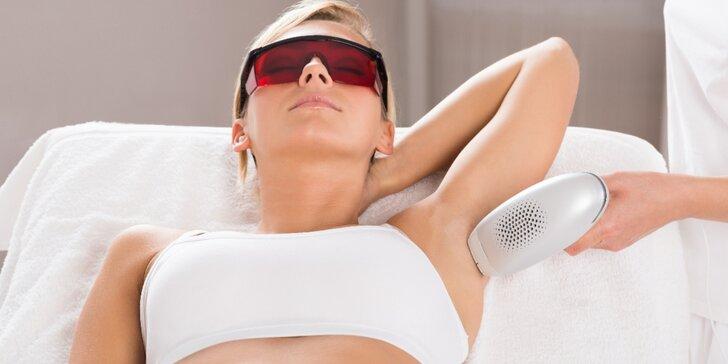 Dopřejte si trvalé odstranění chloupků špičkovým lékařským laserem