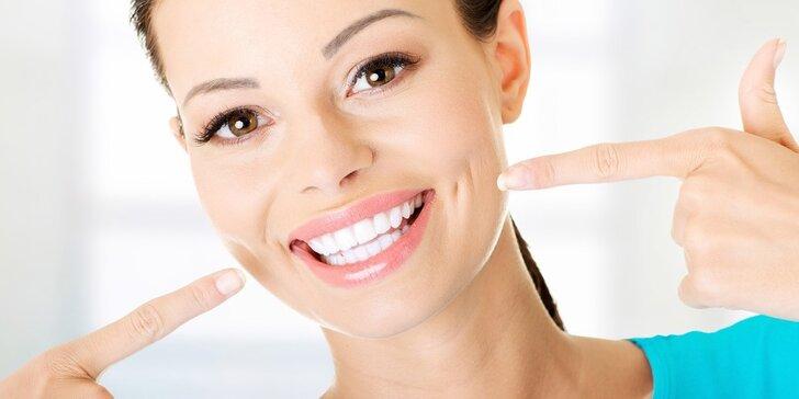 Úsměv zářivější než čerstvý sníh: Ordinační bělení zubů
