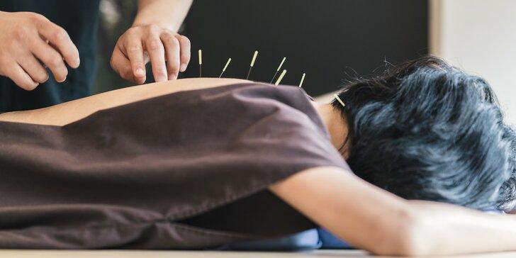 Zatočte se stresem či bolestí zad: akupunktura u lékařky MUDr. Renaty Szabové