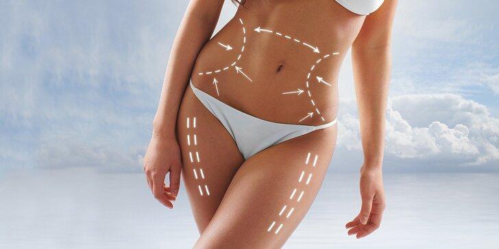 Ultrazvuková liposukce, radiofrekvence těla a lymfodrenáž