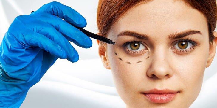Získejte okouzlující pohled: odstranění nadbytečné kůže z horních či dolních víček