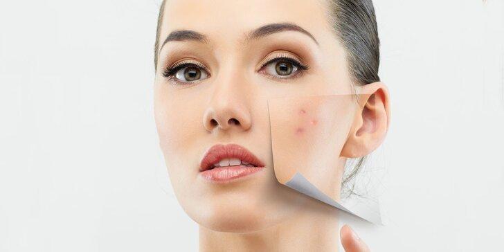 Frakční ošetření akné, jizviček a rozšířených pórů s 10denní účinnou kúrou