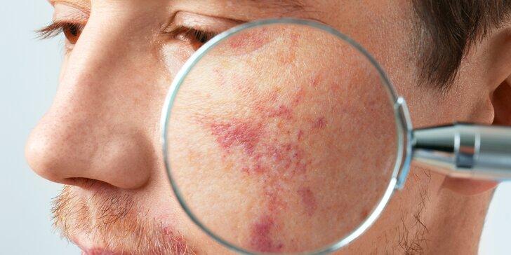 Dejte sbohem pigmentovým skvrnám, žilkám i akné: ošetření přístrojem IPL
