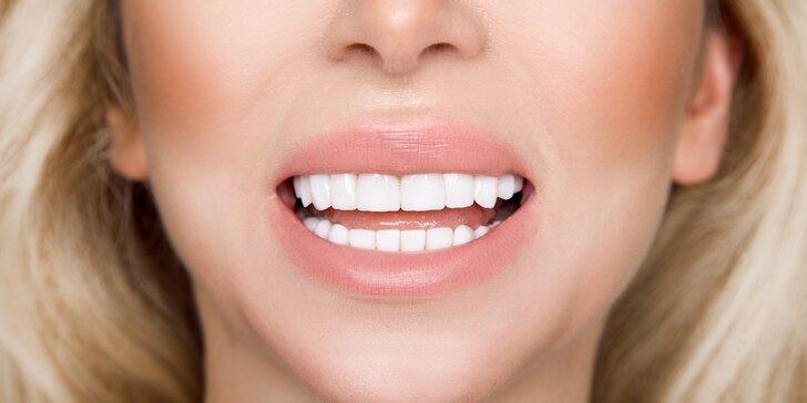 Zářivý úsměv bez peroxidu: 1–3 procedury bělení pomocí metody Star White