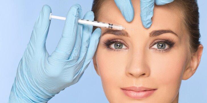 Botulotoxin pro okamžité vyhlazení vašich vrásek