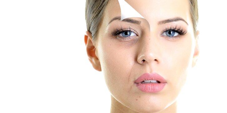 Hloubkové čištění aknózní pleti ultrazvukem včetně aplikace kyselin