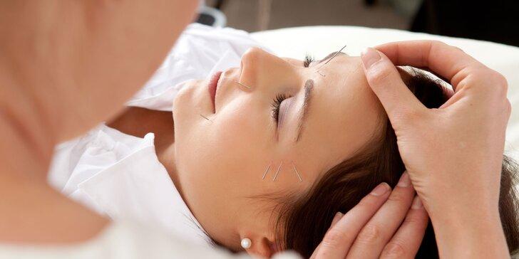 Přirozené omlazení pleti pomocí akupunktury - 1, 3, 5 a 10 ošetření