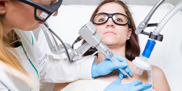 Odstranění nežádoucích znamének, pih či bradavic frakčním laserem