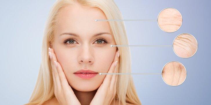 HIFU Ultheralift - neinvazivní facelifting celého obličeje