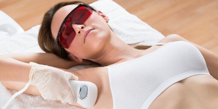 Trvalé odstranění nežádoucích chloupků: epilace lékařským laserem