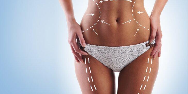 Bezbolestná ultrazvuková liposukce včetně přístrojové lymfodrenáže