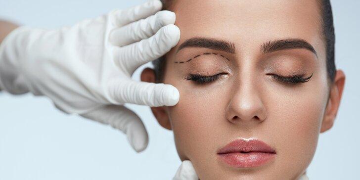 Svět novýma očima: redukce nadbytečné kůže na horních či dolních víčkách