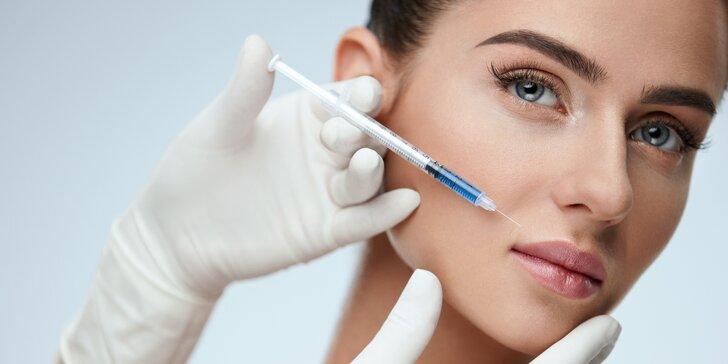 Odstranění mimických vrásek v obličeji pomocí botolutoxinu