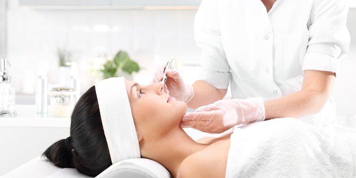 Mezoterapie s kyselinou hyaluronovou: ošetření dekoltu či obličeje dle výběru