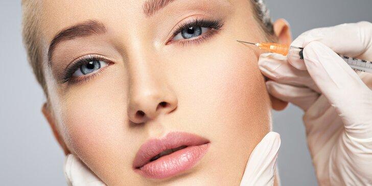 Botulotoxin pro vyhlazení vrásek: čelo, oblast mezi obočím či okolo očí