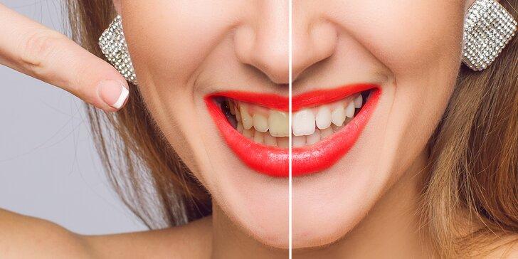 Ordinační bělení zubů lampou Prevdent za 60 minut