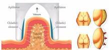 Zhubněte bezbolestně s kryolipolýzou