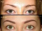 Mikropigmentace obočí nebo rtů