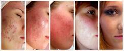 Ošetření proti akné přírodní kosmetikou - 75 min